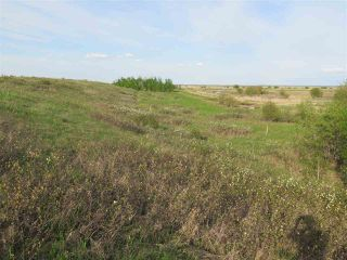 Photo 7: 45063B TWP RD 734 (KLESKUN WEST): Rural Grande Prairie County Rural Land/Vacant Lot for sale : MLS®# E4190065